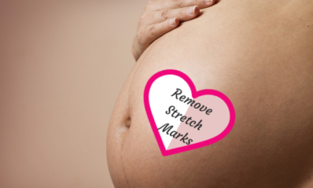 How to Avoid Stretch Marks During Pregnancy